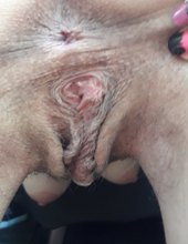 Amatérka s většími pysky
