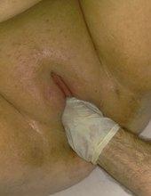 Gynekolog