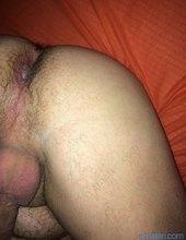 nadrzany anal